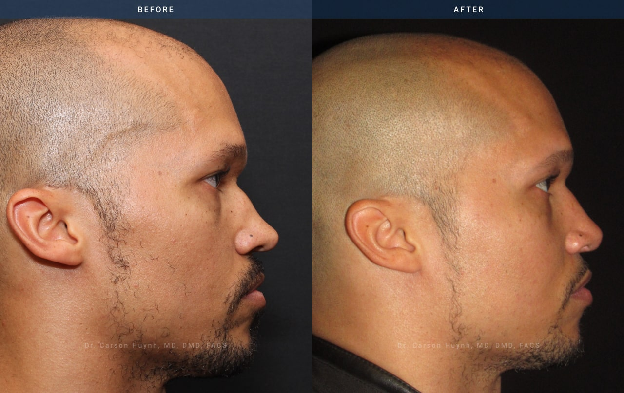 rhinoplasty - before and after pictures of a man who haas received rhinoplasty