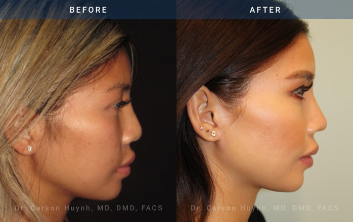 Rhinoplasty side view before and after picture