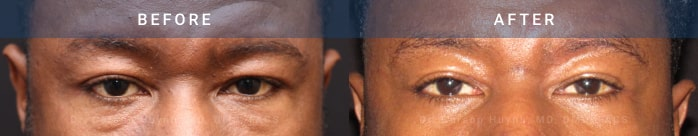 Brow lift surgery before and after pictures