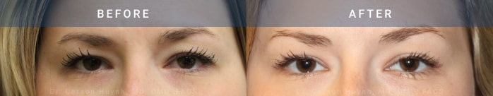 Blepharoplasty Surgery (eyelid) before and after picture