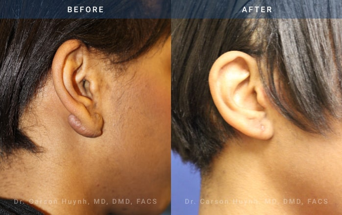 Earlobe reconstruction surgery before and after pictures