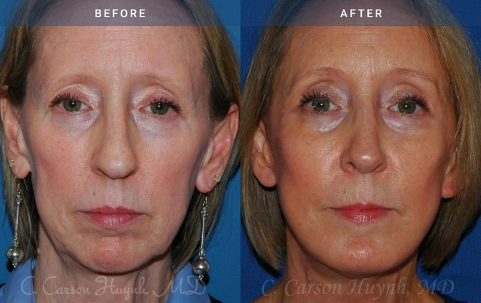 facelift front view Radiance Surgery & Aesthetic Medicine