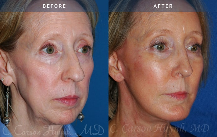 facelift 3/4 view Radiance Surgery & Aesthetic Medicine