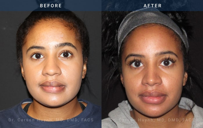 Rhinoplasty front view at Radiance Surgery & Aesthetic Medicine