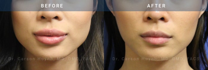 Jaw Botox before and after pictures