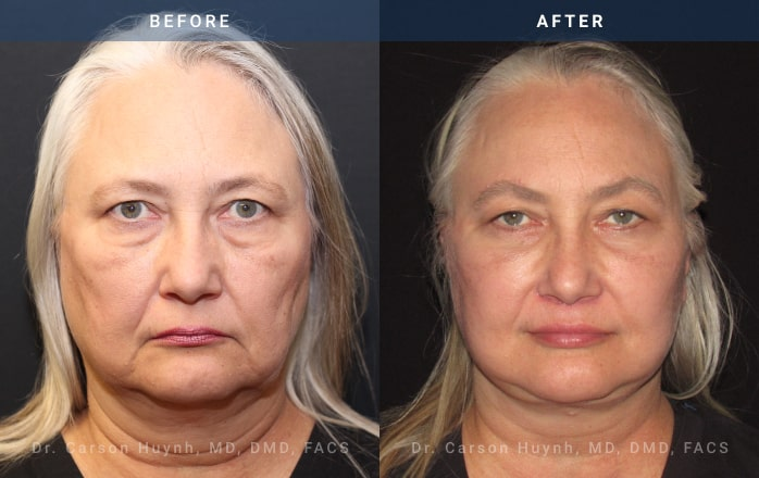 necklift front view Radiance Surgery & Aesthetic Medicine