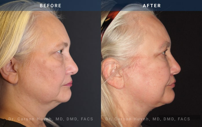 necklift side view at Radiance Surgery & Aesthetic Medicine