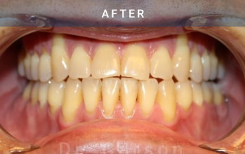 Teeth view - after picture of orthognathic surgery