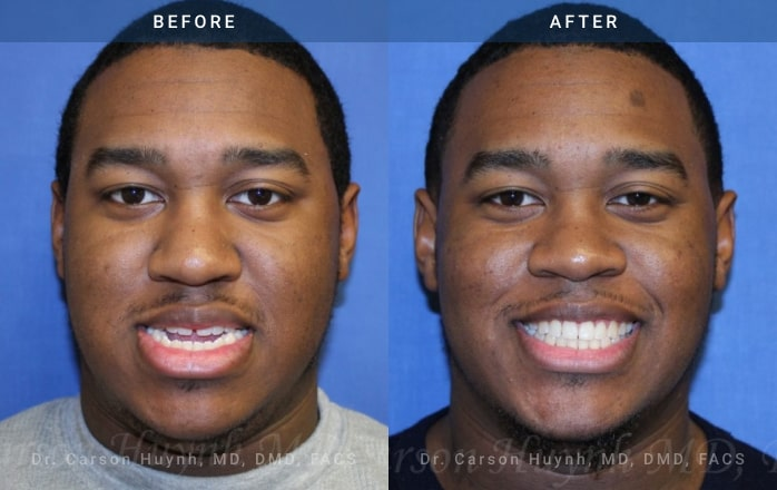 Front view of man who had Orthognathic surgery