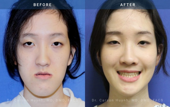 Front view of woman who had Orthognathic surgery