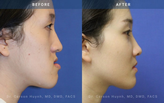 Side view of woman who had Orthognathic surgery