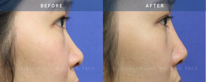 Rhinoplasty surgery before and after pictures (side view)