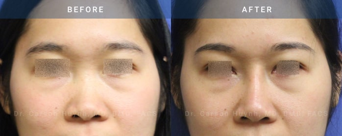Rhinoplasty surgery before and after pictures (front view)