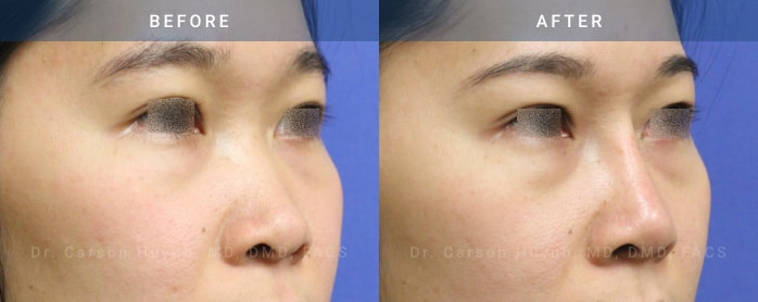 Rhinoplasty surgery before and after pictures (3/4 view)