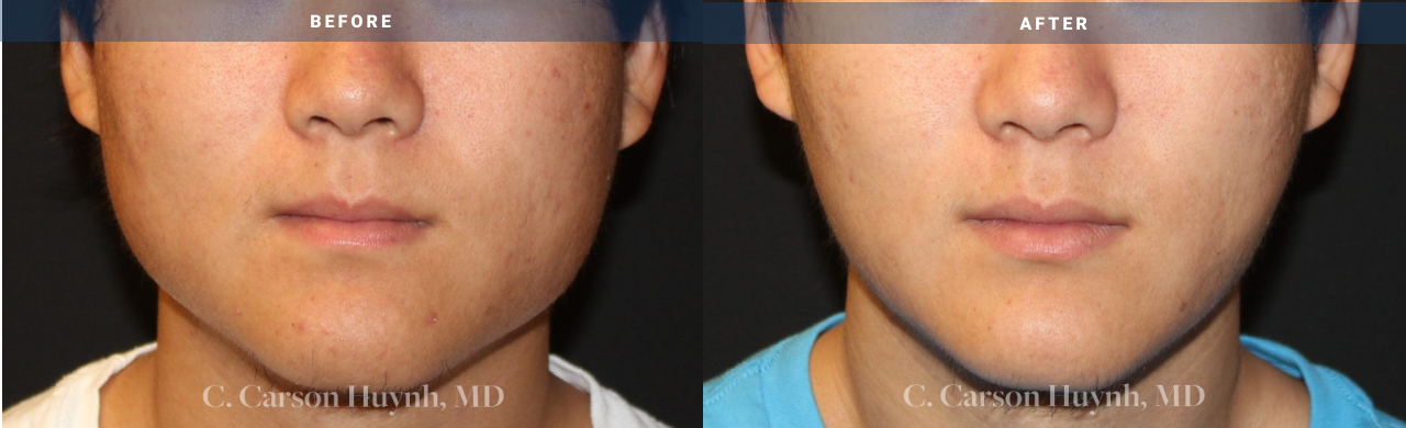 v-line jaw surgery - before and after pictures