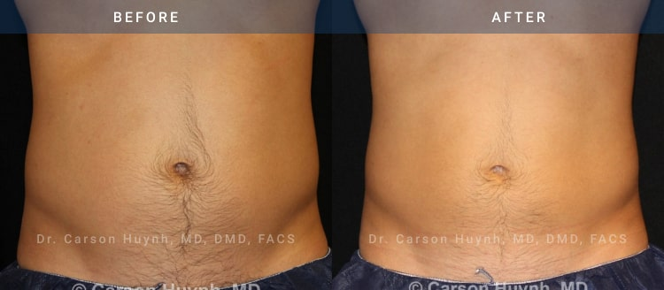 Coolsculpting before and after pictures