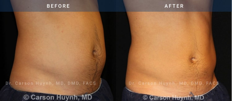 CoolSculpting: Nonsurgical Fat Reduction - before and after pictures