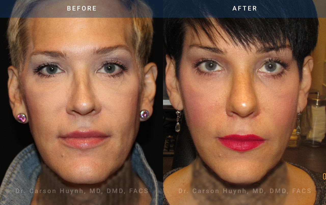 radiance - facial feminization surgery / transgender before and after pic