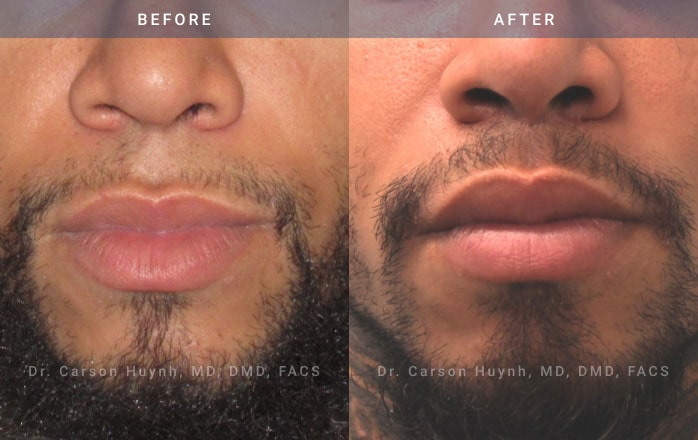 Lip Lift Procedure at Radiance Surgery and Aesthetic Medicine